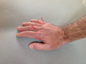 acupuncture for hand pain
